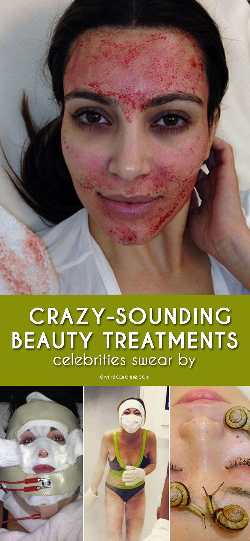 What You'll Have to Pay for Crazy Celebrity Beauty Treatments