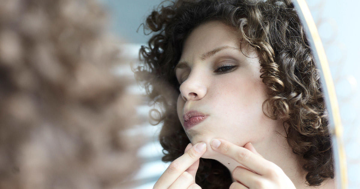 Adult Acne: The Best Treatment for Pimples