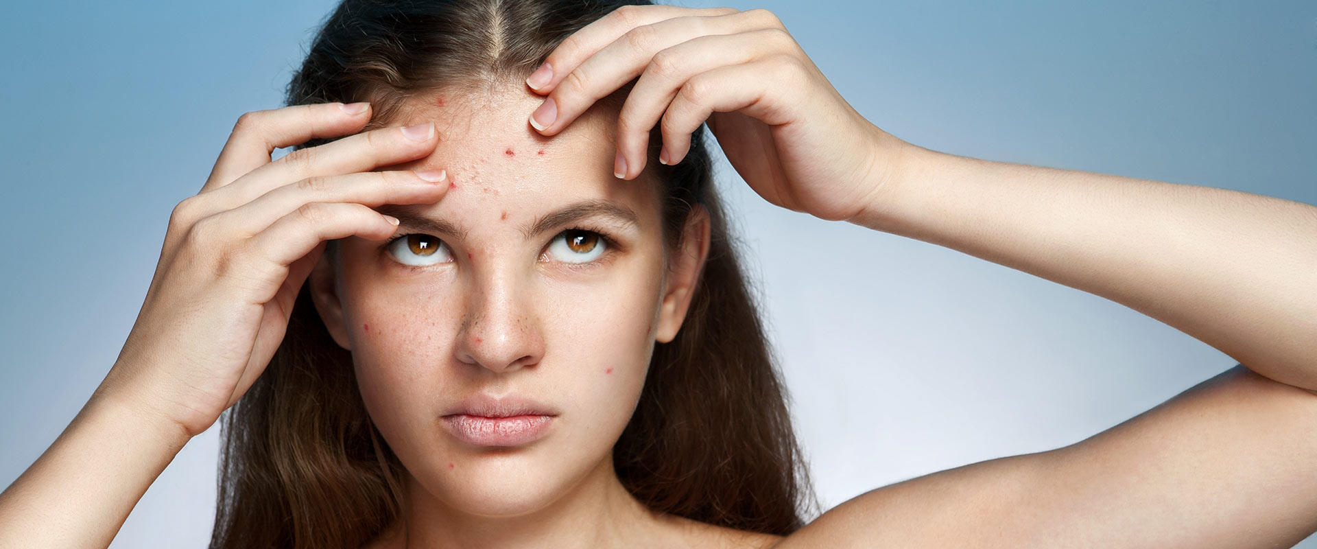 Banish the Blemish! Pinpointing Acne Causes | more.com