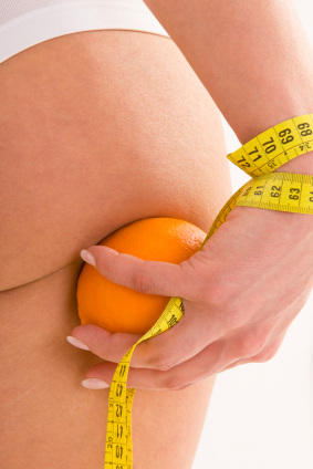 Chewing the Fat: Can We Get Rid of Cellulite?