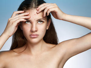 Banish the Blemish! Pinpointing Acne Causes
